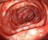 التهاب القولون الأيسر