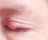 7 وصفات طبيعية للتخلص من شحاذ العين