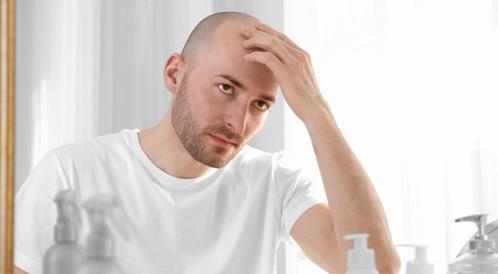 علاج الصلع عند الرجال: هل من أمل؟