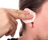 نزيف الأذن