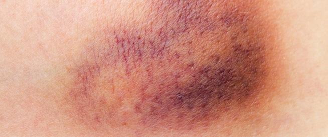 النزيف الداخلي: الأسباب والأعراض والعلاج
