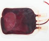 فرط حجم الدم