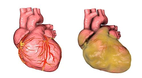 مرض تضخم القلب