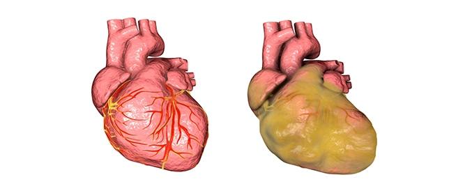 مرض تضخم القلب بين الأسباب والعلاج