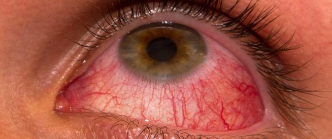 عدم نمو رموش العين: الأعراض والعلاج