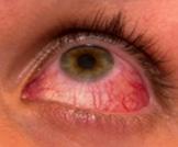مضاعفات عدم نمو الرموش في جفن العين