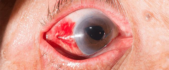 جلطة العين: الأسباب والأعراض وطرق العلاج