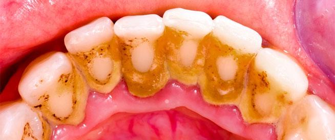 بلاك الأسنان: أسبابه وطرق منزلية لعلاجه