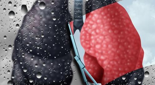 مضاعفات سرطان الرئة