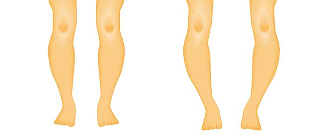 كساح الأطفال: أعراضه وأسبابه وطرق علاجه