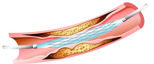 قسطرة القلب: فوائد وعوامل خطر