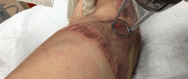 ترقيع الجلد: ما هو وكيف يحدث؟