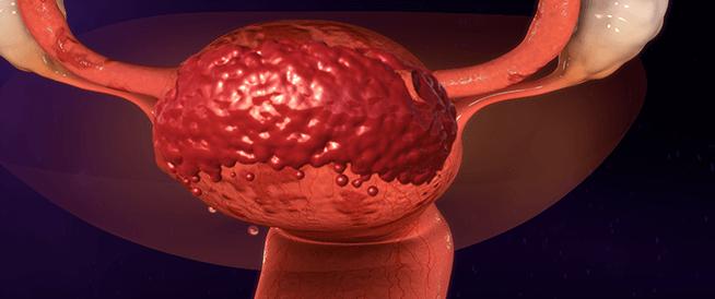 10 أسئلة وجهيها لطبيبك حول انتباذ بطانة الرحم
