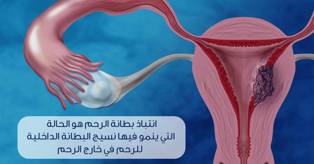 10 أسئلة وجهيها لطبيبك حول انتباذ بطانة الرحم ويب طب