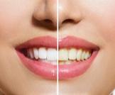 التخلص من الأسنان الصفراء