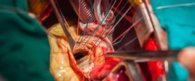 عملية القلب المفتوح: خطوات ومخاطر