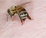 وصفات طبيعية لعلاج لسعات النحل!