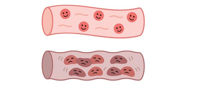 أسرار حماية الأوعية الدموية