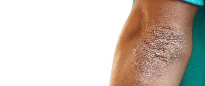 الشواك الأسود: أسباب وأعراض وعلاج