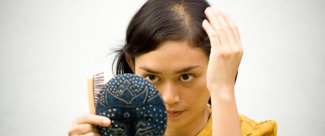 هل تصاب النساء بالصلع؟