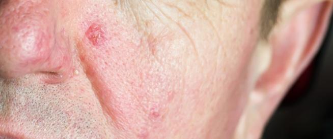 تمزّق الأوعية الدموية في الوجه