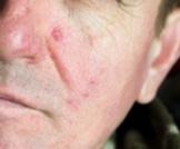 تمزق الأوعية الدموية في الوجه