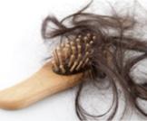 أسباب غريبة جداً لتساقط الشعر لديك و لديها!
