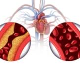 15 مرضا يصيب جهاز الدوران