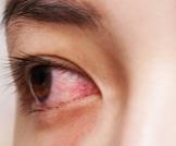 أمراض وأمور غريبة قد تصيبك بالعمى