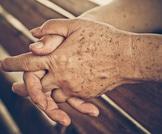 أمور تحدث للجلد مع تقدم العمر