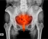 مرض التهاب الحوض