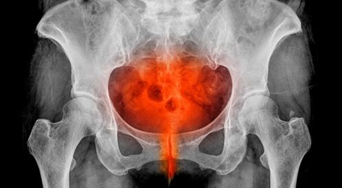 مرض التهاب الحوض أكثر من مجرد ألم في البطن ويب طب