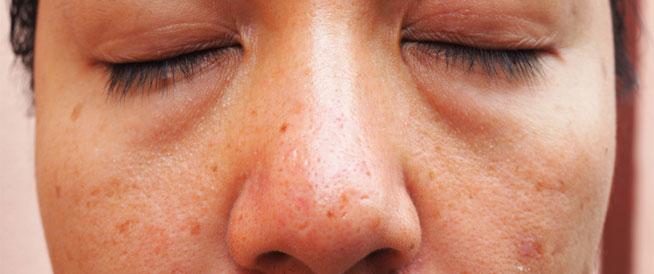 أسباب وعلاج تورم الوجه