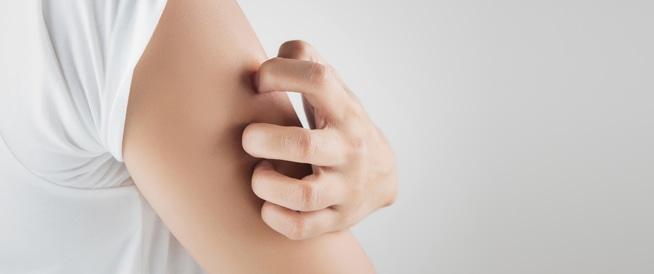 علاج قرص الناموس طبيعيًا