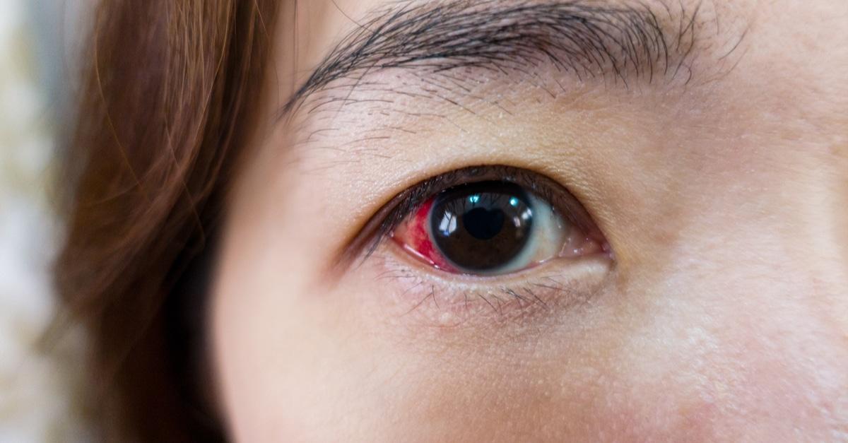 مرض انفصال الشبكية