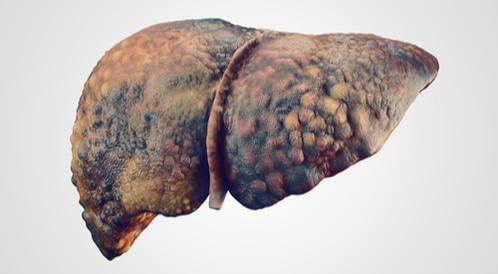 غيبوبة الكبد: هذا ما عليك معرفته عنها!