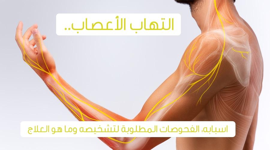 التهاب الأعصاب الأعراض والأسباب والعلاج ويب طب