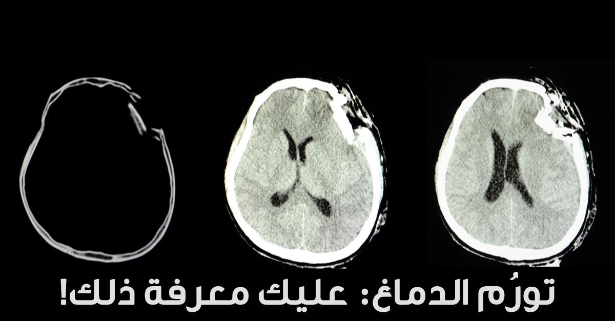كل ما يتعلق باورام الدماغ ويب طب