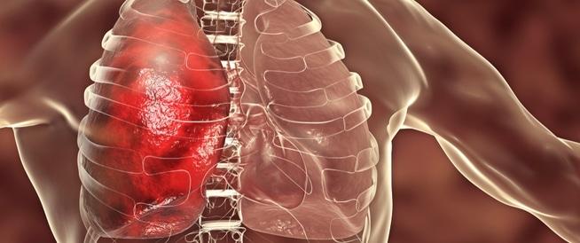 ذات الرئة الاستنشاقية: دليلك الكامل لهذا المرض