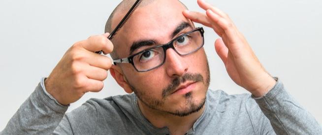 أسباب الصلع الوراثي وطرق علاجه