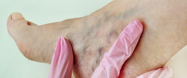 اعراض جلطة الساق