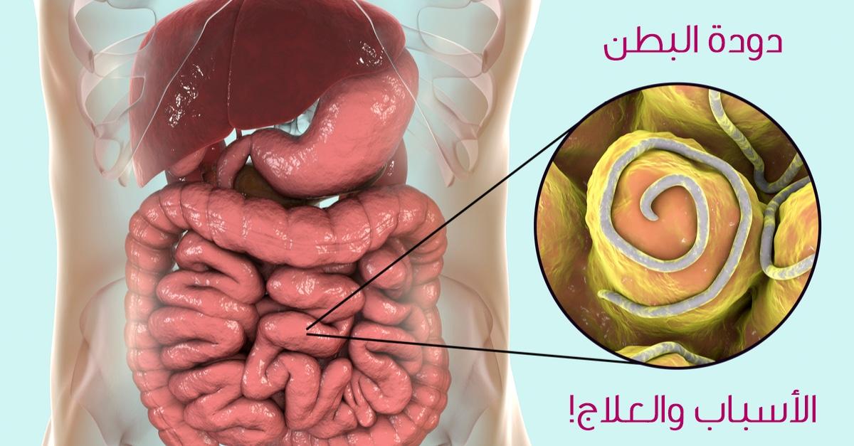 ما هو علاج ديدان البطن أو الأمعاء ويب طب