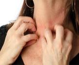 أسباب حساسية الجلد المفاجئة: أهم المحفزات من بيئتك وبيتك!