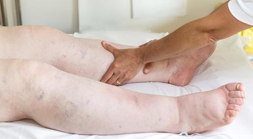 كيف تعلم أنك مصاب بتراكم الأملاح في الرجلين ويب طب