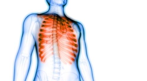 أسباب ألم القفص الصدري إليك أهمها ويب طب