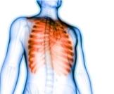ألم القفص الصدري