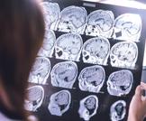 ضمور المخ