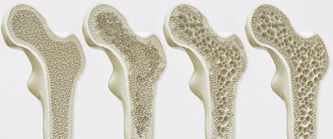 أعراض هشاشة العظام ومراحلها