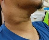 أعراض سرطان الغدد الليمفاوية