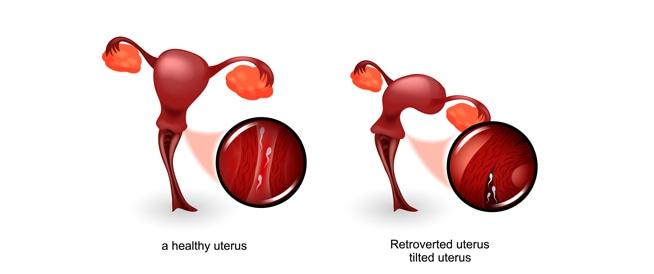 الرحم المقلوب: الأسباب والأعراض والعلاج